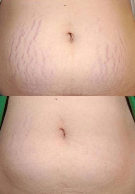 Ραγάδες Εγκυμοσύνης και Fractional Laser Therapy