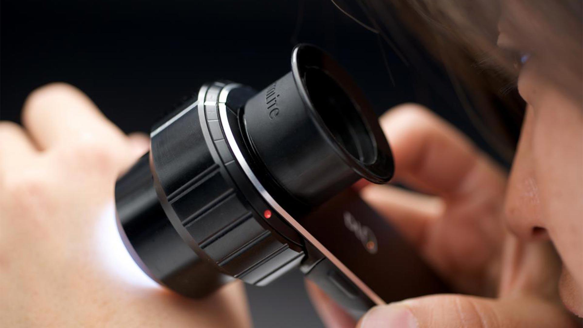 Ψηφιακή Δερματοσκόπηση Η προληπτική εξέταση για τον καρκίνο του δέρματος.