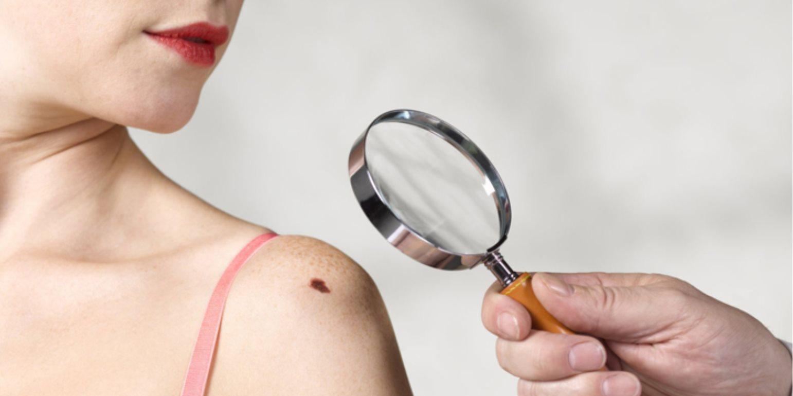 Καρκίνος Δέρματος – Μελάνωμα