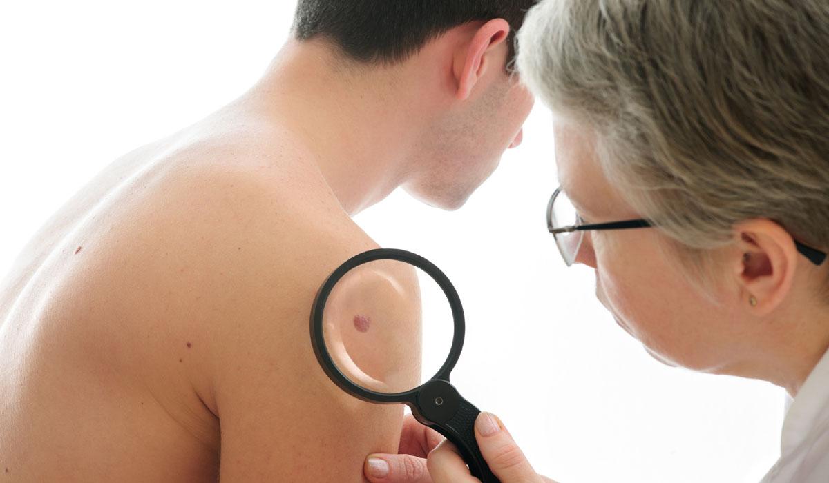 4 Μαίου Ευρωπαική Ημέρα Μελανώματος και Ημέρα Καρκίνου του δέρματος.
